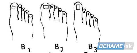 ce6f0f14439f Bežecké topánky - na čo si dávať pri výbere pozor